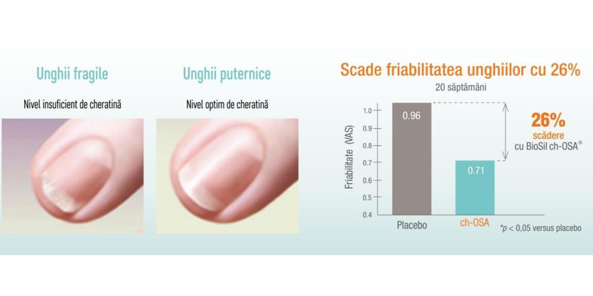 ioSil scade friabilitatea unghiilor pentru unghii puternice